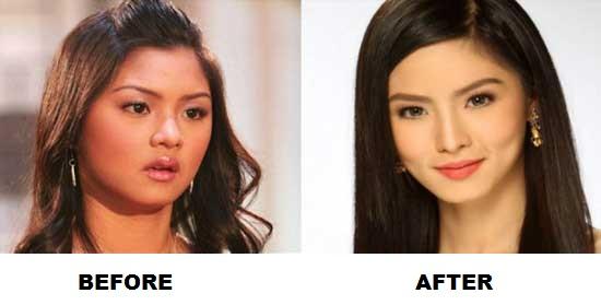 Filipina filipino appearance beauty nose job plastic surgery skin whitening